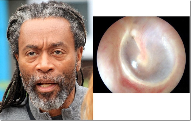 McFerrin and Ear Drum
